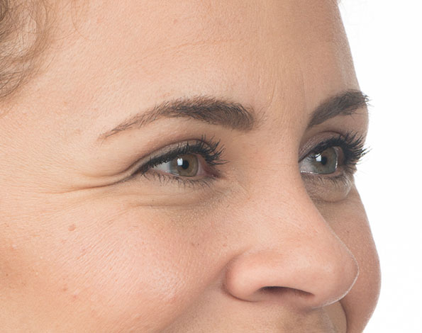 Before-and-After Photos   BOTOX® Cosmetic