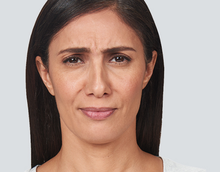 A graphic illustrates the injection sites for frown lines treatment on a photo of a woman who received BOTOX® Cosmetic